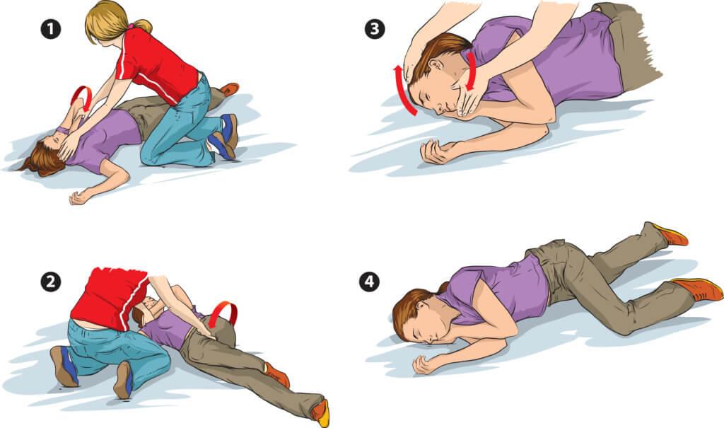 Các bước sơ cứu cơn co giật, động kinh